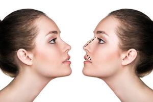 Chirurgie esthétique du nez ou rhinoplastie - Dr Elbaz à Levallois Perret 92