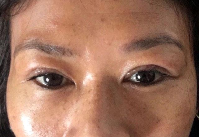 Rajeunissement femme asiatique - Dr Elbaz